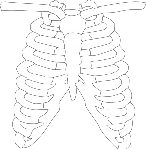 syndroom van tietze borstbeen