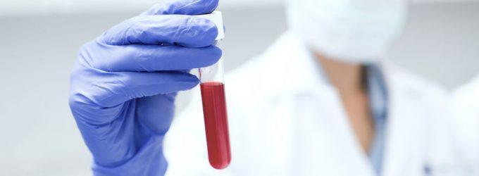 HIV test laten uitvoeren – waar doe je dat?
